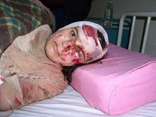 先のイラク戦争の犠牲者の少女。.jpg